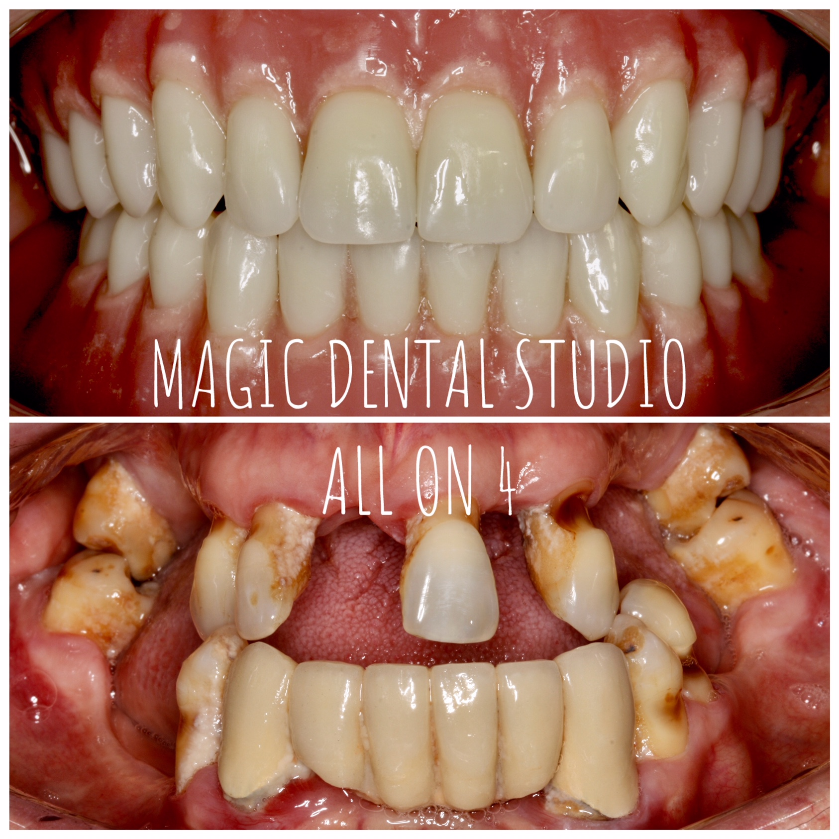 all on 4, implanty, dental implants, overdenture, proteza na 4 implantach