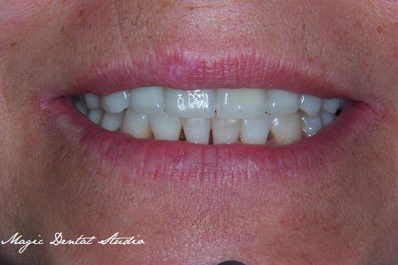 Porcelain crowns on implants