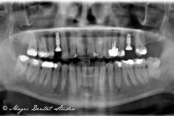 dental implant OPG post surgery