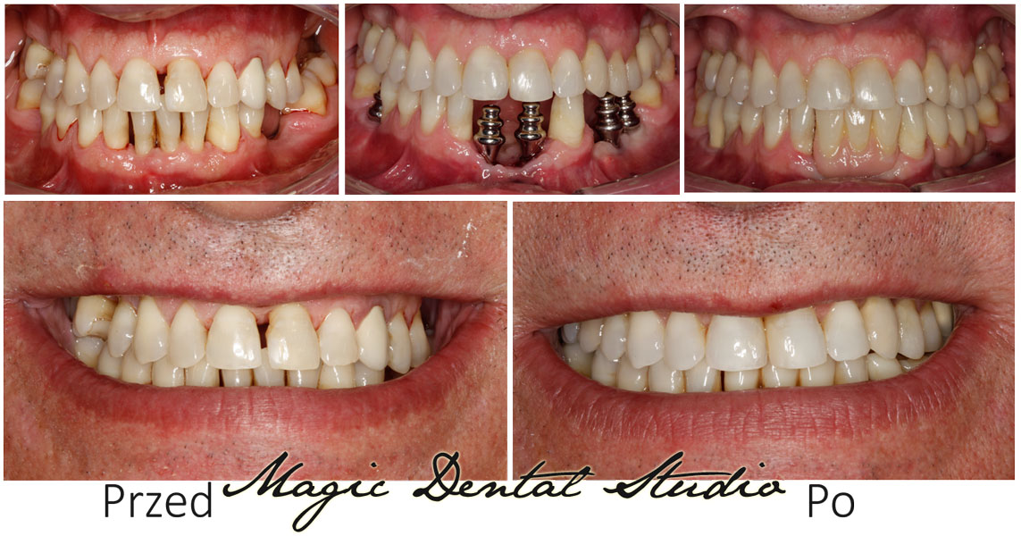 Dental bridge implant supported
