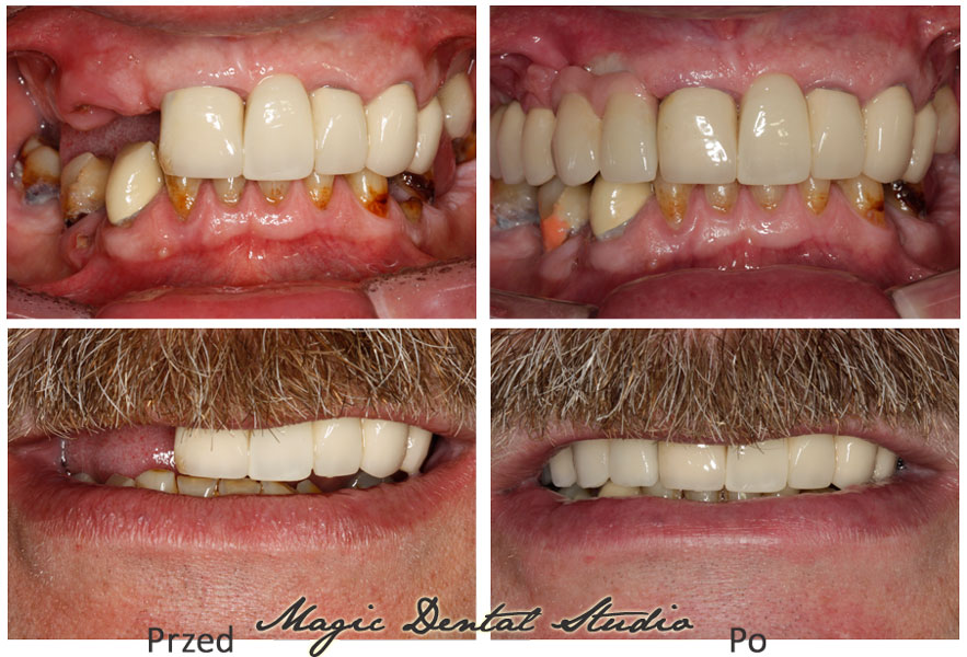 Lateral teeth loss - reconstructed with dental bridge implant supported