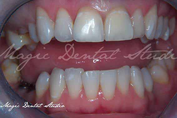 Single tooth loss - dental implants