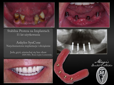 Dental implants Poland, overdenture