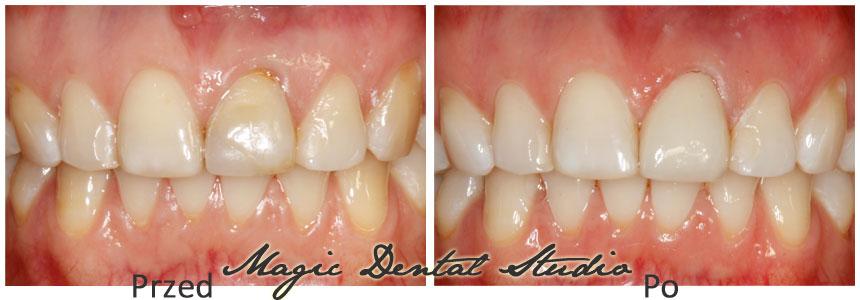 wybielanie zębów beyond poznań